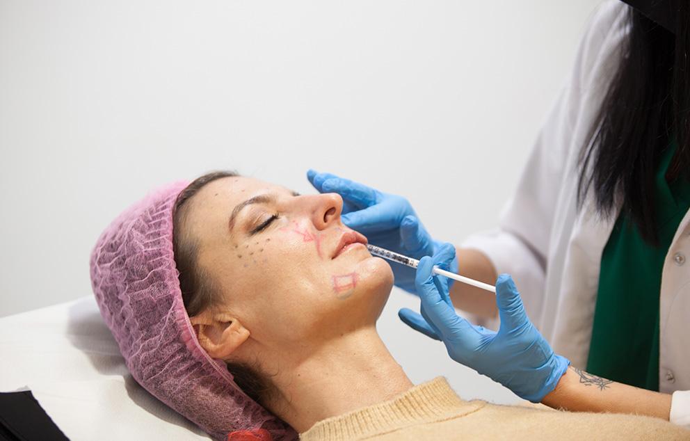 Tratamiento de Carboxiterapia Facial en Zaragoza